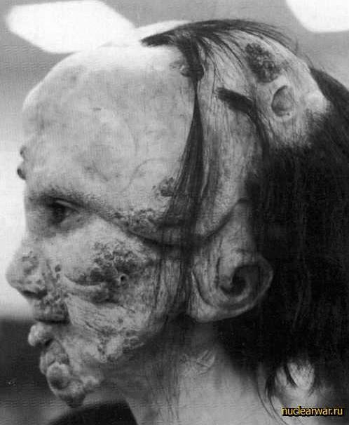 дети мутанты фото чернобыля